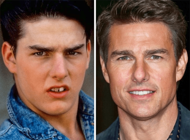 cambiar sonrisas tom cruise