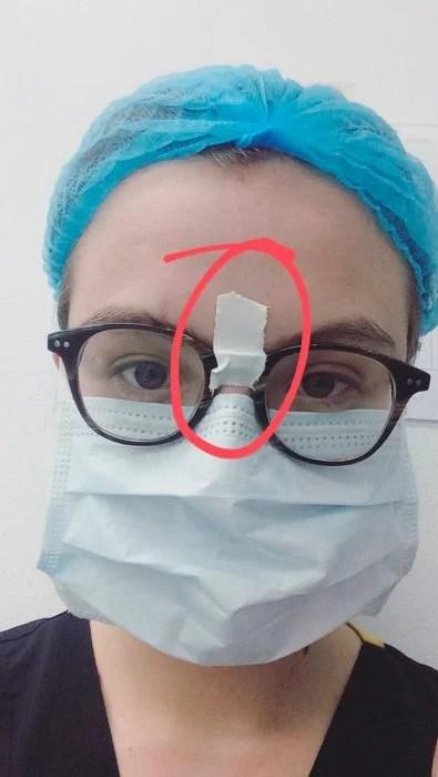 se pegó los gafas con cinta