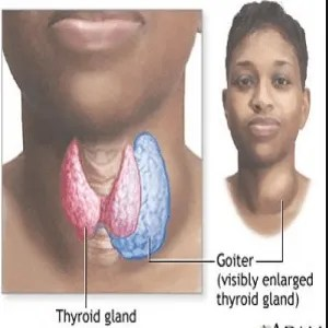 Goiter Treatment