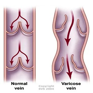 Varicocele & Varicose Veins Treatment
