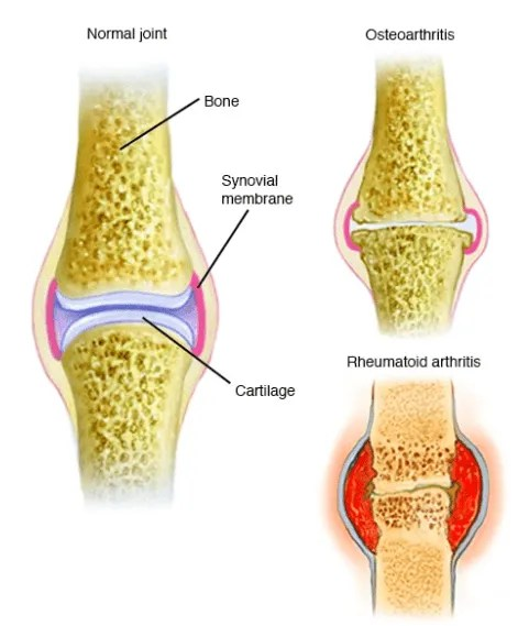 bone and cartilage