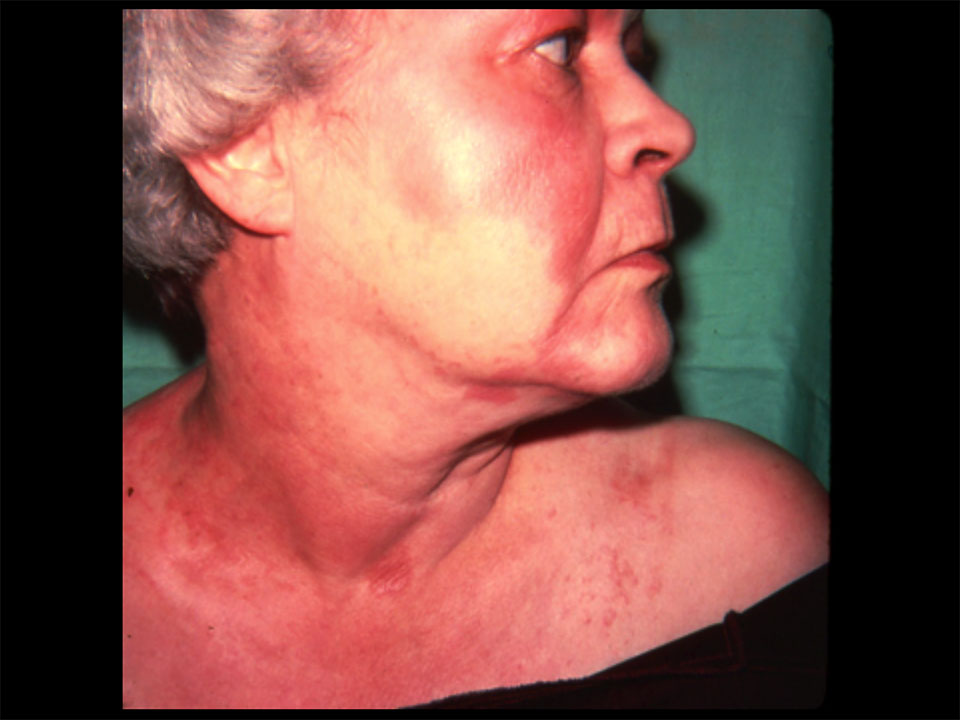Full Facial Malady - Red Skin Syndrome