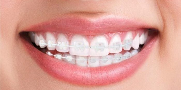 What are the most aesthetic orthodontic treatments