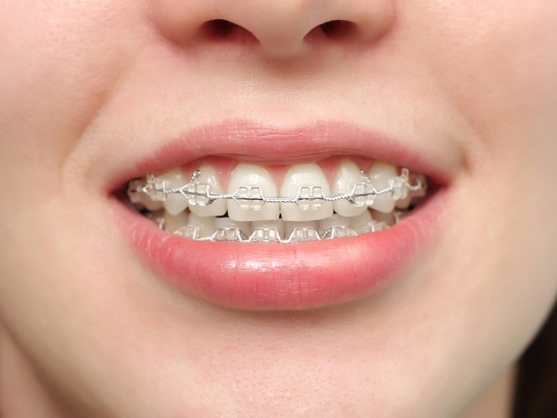 clear-bracket-braces