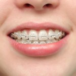 clear-bracket-braces