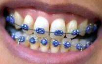 braces-elastics-purple-300x187-7881086
