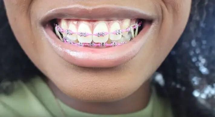 braces-update-5641972