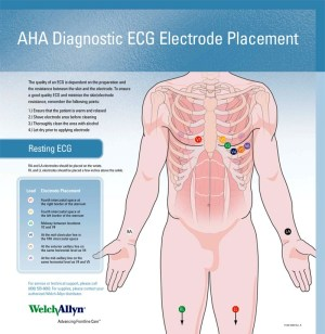 Welch Allyn ECG Placement Wall Chart #71300000