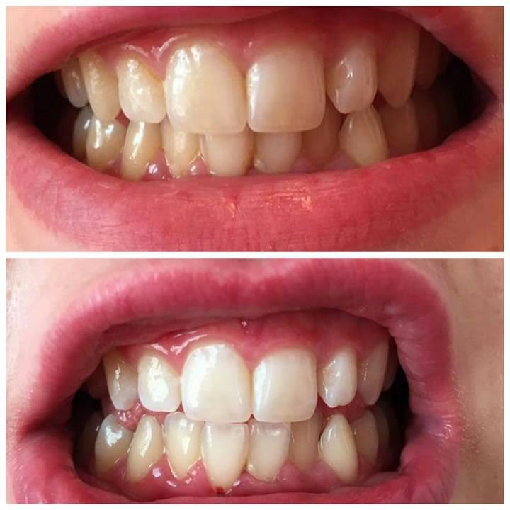 Teeth Whitening - Mandy Irving - Redefine Medical ...