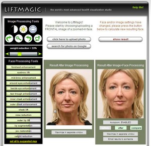 liftmagic small LiftMagic   check out your facelift before you hand over the cash