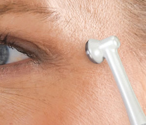 Crows Feet Reducing Skin Toner – get young instantly, or even sooner