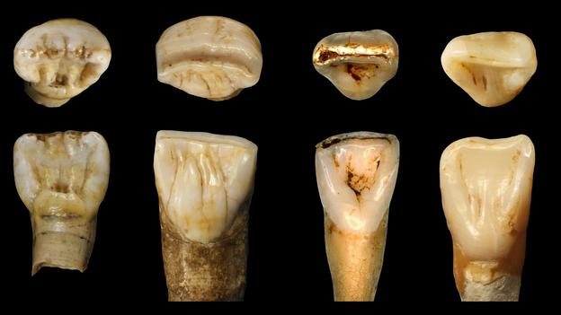 Strange fossils from China don't seem to fit any known hominin species. Could they be something new?  32614teeth