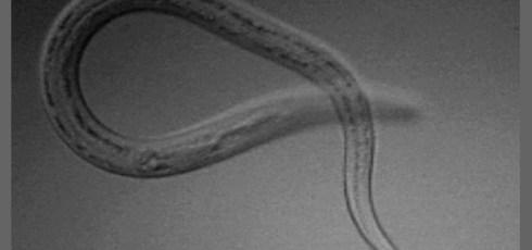 New World Hookworm, Necator americanus