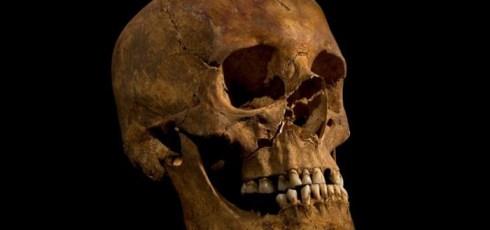 Tooth, Bone Analysis Yields New Revelations About Life Of Richard III