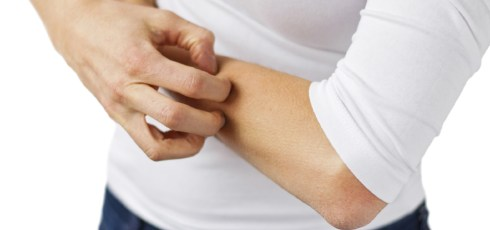Scientists Solve The Mystery Of Why Scratching Makes You Feel Even Itchier