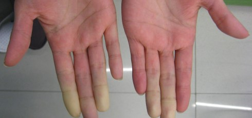 Raynaud's Syndrome and Fibromyalgia