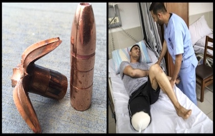 Israeli use of butterfly bullets on Gaza civilians