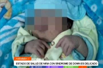 EL ESTADO DE SALUD DE NIÑA CON SÍNDROME DE DOWN ES DELICADO