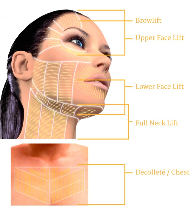 Ultherapy NonSurgical Neck and Face Lift l Reflections ...