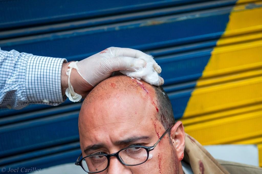 Injured demonstrator in Cairo, Egypt (February 2, 2011)