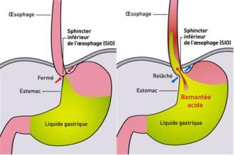 Le sphincter oesophagien inférieur et sa relation au reflux gastrique