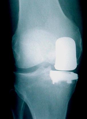 stem cell for knee