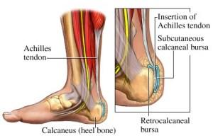 Bone Marrow Stem Cells help Repair Achilles Tendon Rupture