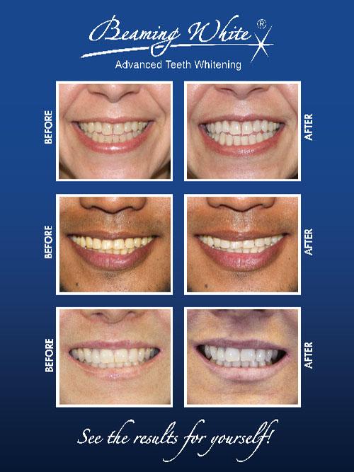 Teeth Whitening with Beaming White - ReGen Laser