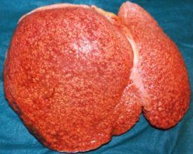 Foie atteint de cirrhose alcoolique ou de Nash, la maladie du soda, aussi appelée maladie du foie gras humain.