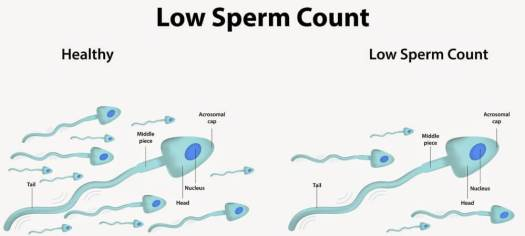 images of sperms high and low count
