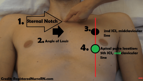 small resolution of apical pulse location assessment site nursing