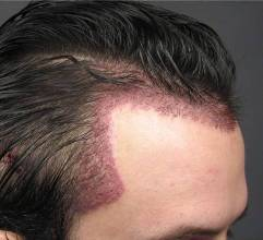 Restoring Temple Triangles With Hair Transplant Surgery