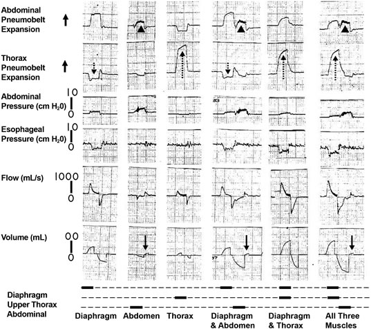 Respiratory muscle pacing with chronically implanted
