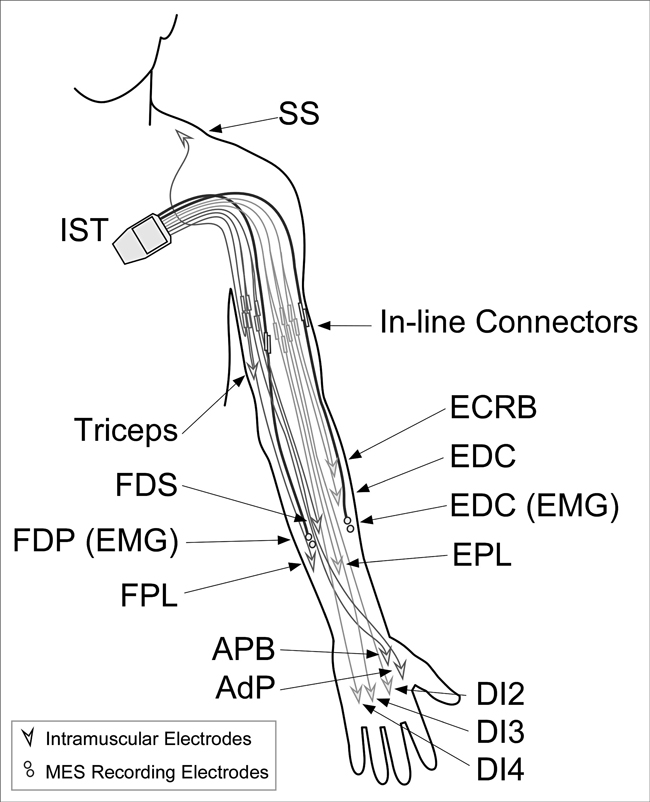 Implanted neuroprosthesis for assisting arm and hand