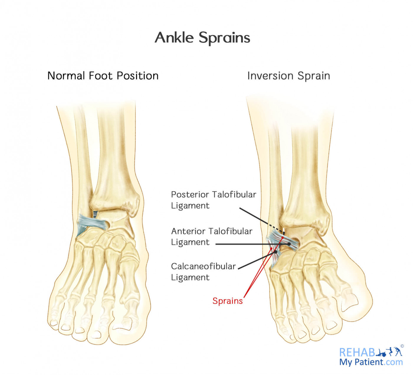 hight resolution of ankle sprain medial