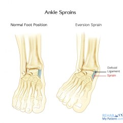 Outside Tendon Hand Diagram Dodge Durango Radio Wiring Ankle Sprains Medial And Lateral Rehab My Patient