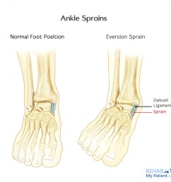 ankle sprain lateral [ 1400 x 1325 Pixel ]