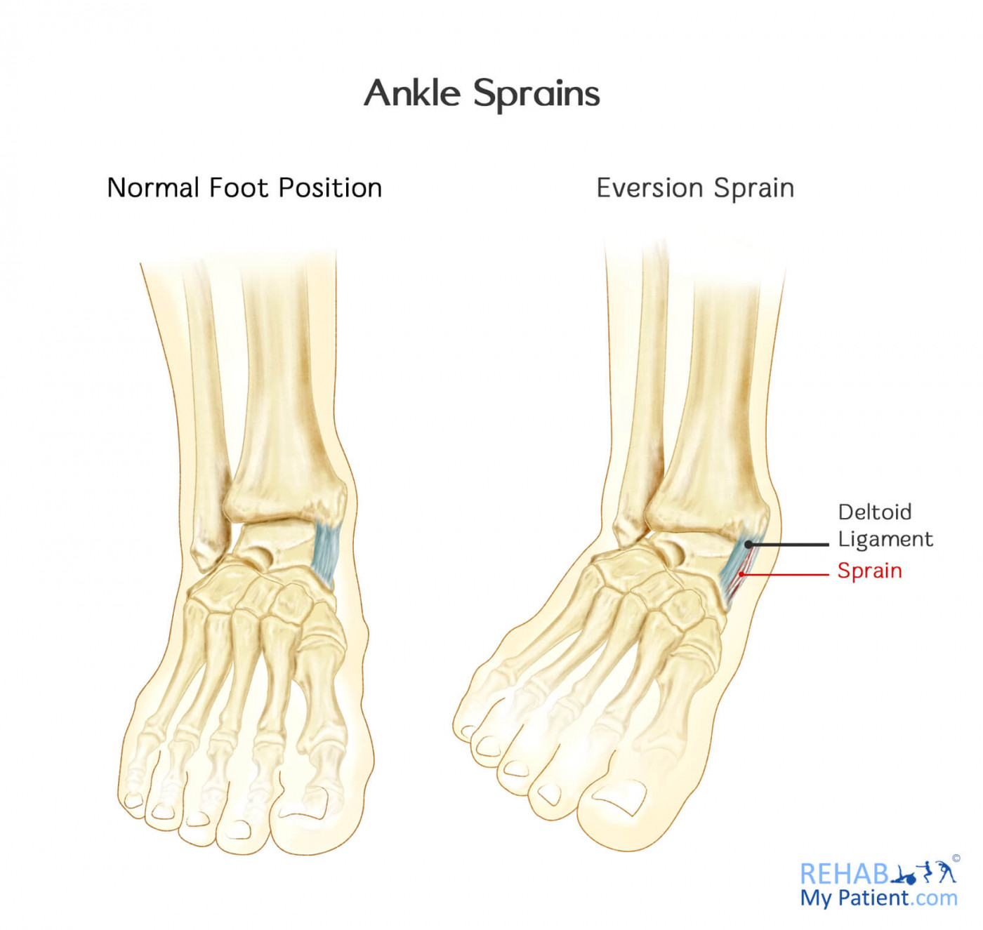 hight resolution of ankle sprain lateral