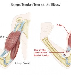 biceps tendon tear at the elbow anatomy [ 1400 x 802 Pixel ]