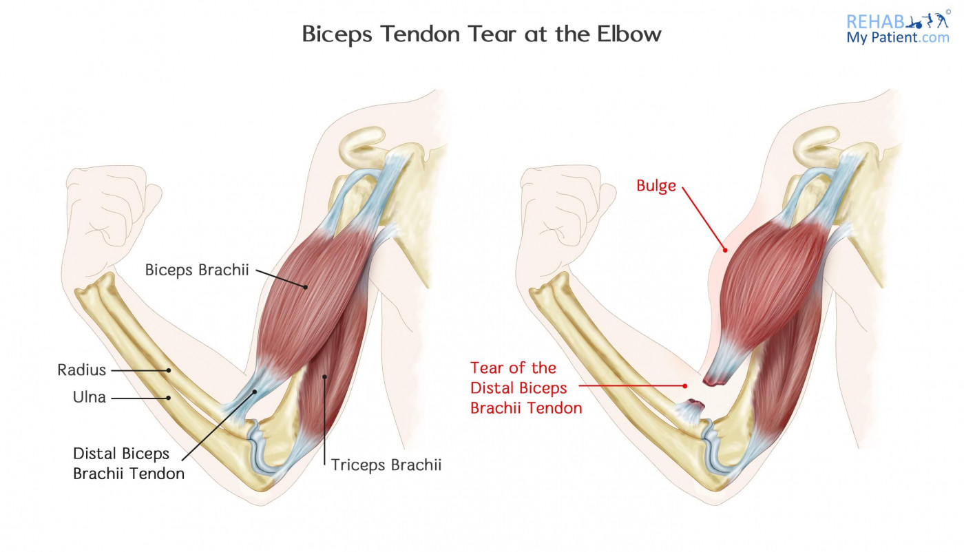 hight resolution of biceps tendon tear at the elbow anatomy