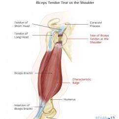 Triceps Brachii Diagram Industrial Wiring Diagrams Biceps Tendon Tear At The Shoulder Rehab My Patient