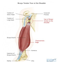 how to treat biceps tendon tear at the shoulder  [ 1257 x 1400 Pixel ]