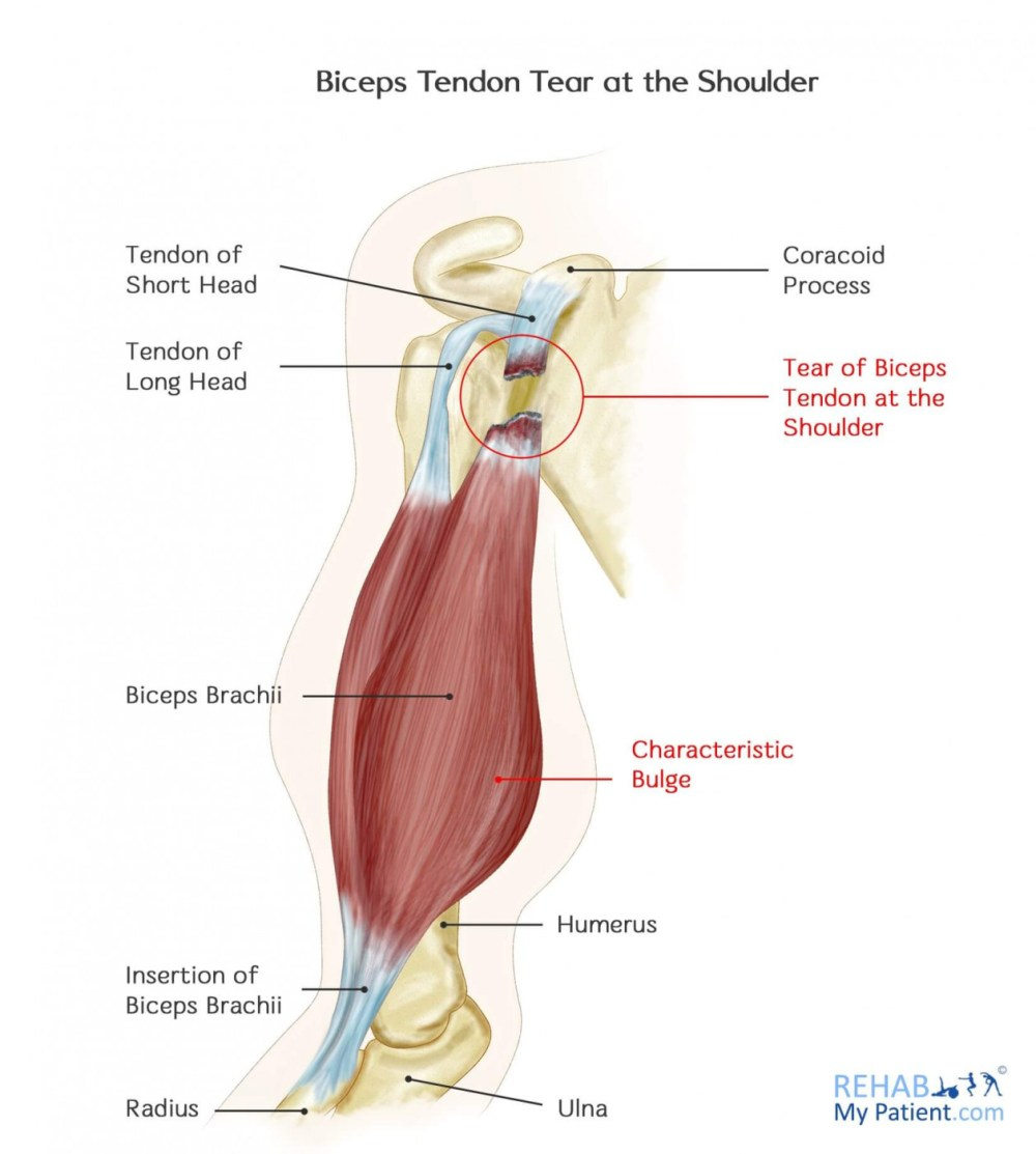 medium resolution of how to treat biceps tendon tear at the shoulder