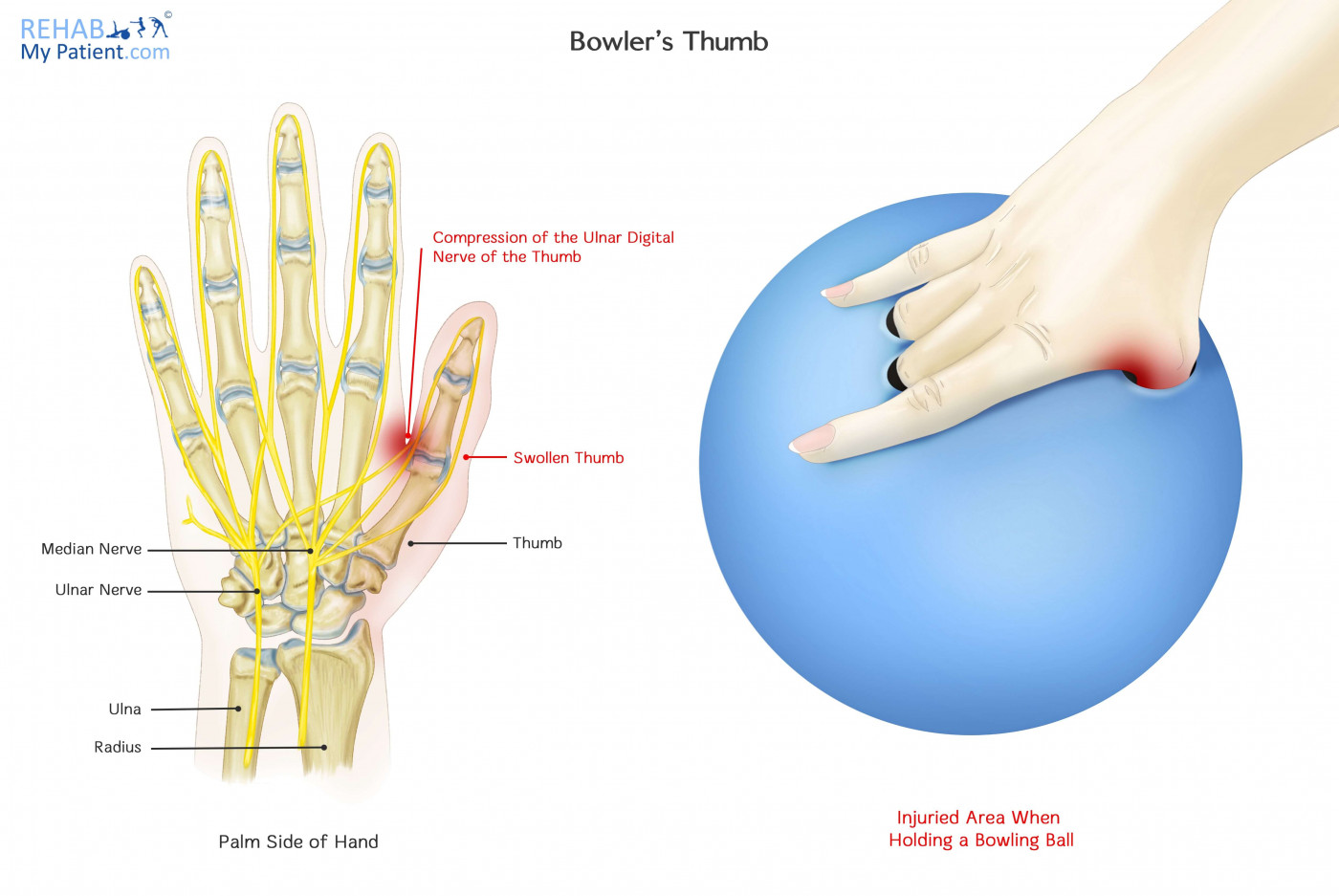 hight resolution of bowler s thumb