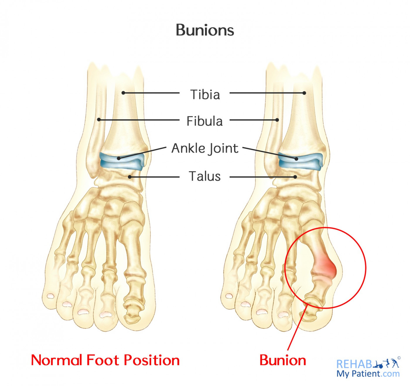 hight resolution of altered gait can cause a number of other problems in the lower limb and up the spine bunions