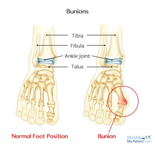 small resolution of altered gait can cause a number of other problems in the lower limb and up the spine bunions