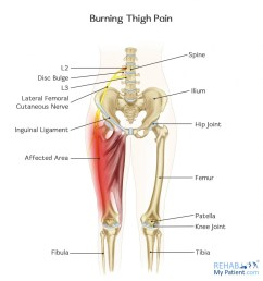 how to treat burning thigh pain  [ 1327 x 1400 Pixel ]