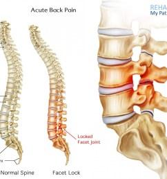 acute back pain anatomy [ 1400 x 1150 Pixel ]
