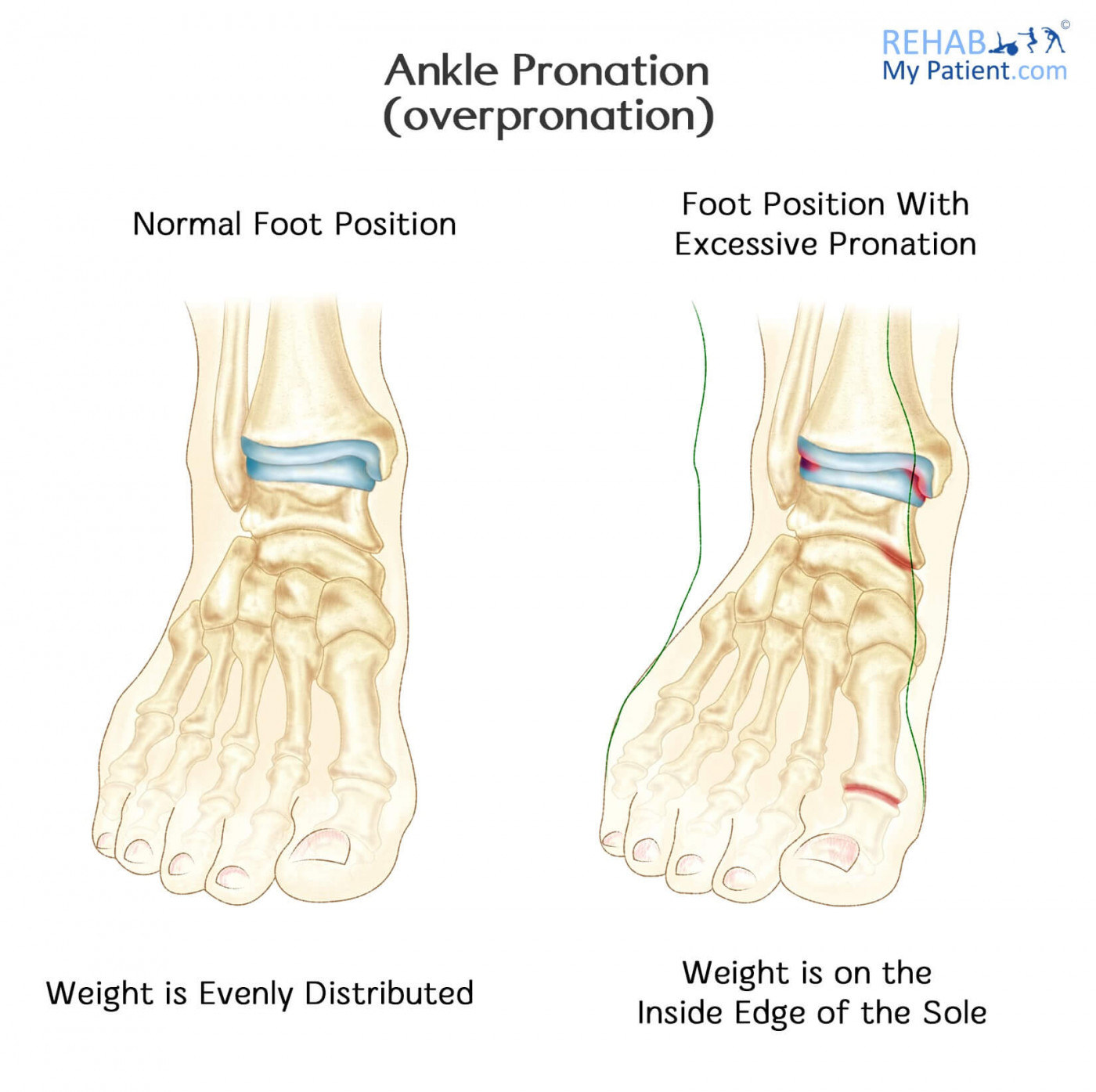 hight resolution of signs symptoms of pronation