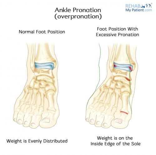 small resolution of signs symptoms of pronation